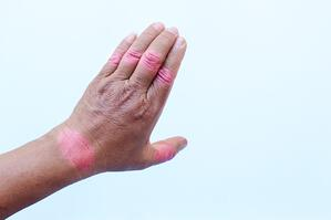 rheumatoid-arthritis-of-hands-isolated-on-white-background_t20_pxZlld